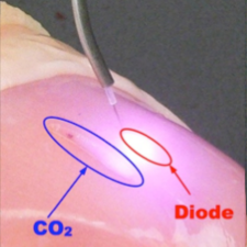4a - CO2 vs Diode Lasers