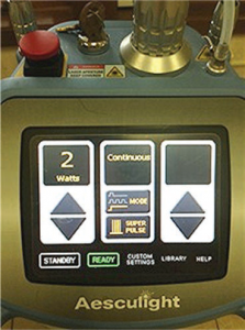 Laser Settings - Incision marking: 2 watts in the continuous wave SuperPulse mode with a 0.25 mm-0.4 mm spot size