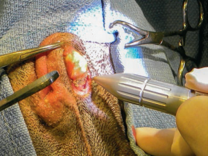 The anal gland is visualized and blunt dissection is done to separate the gland from the surrounding tissue