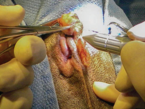 These areas are easily dissected using gentle caudal traction on the anal gland and the laser to separate the tissues