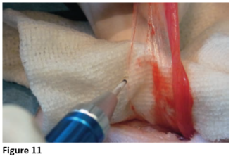 Figure 11 - Cutting The Broad Ligament