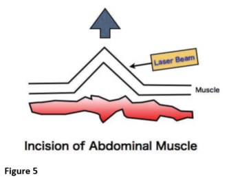 Figure 5 - Incision of Abdominal Muscle Diagram
