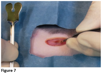 Figure 7 - Abdominal Muscle Incision 2
