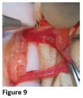 Figure 9 - Cutting The Suspensory Ligament 1