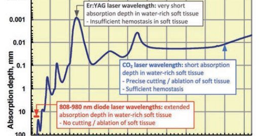 Soft Tissue Cutting with CO<sub>2</sub>, Diode Lasers