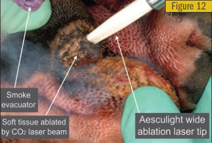 Aesculight wide ablation laser tip