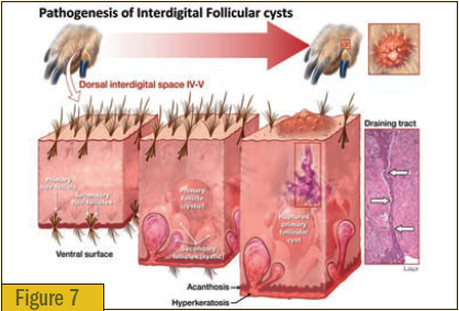 Pathogenesis of interdigital follicular cysts