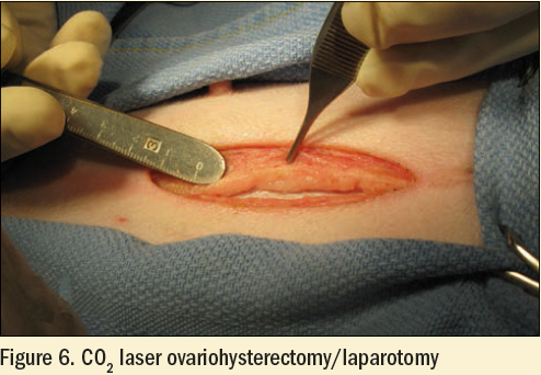 Figure 6 - CO2 laser ovariohysterectomy / laparotomy