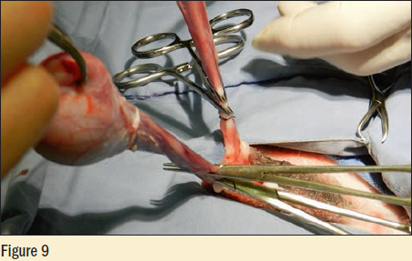 Figure 9 - The cord is double clamped with mosquito hemostats and the cord is cut between the hemostats with scissors or laser