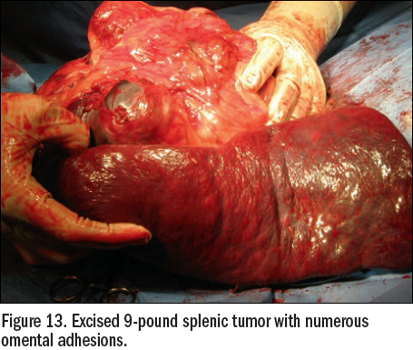 Figure 13 - excised splenic tumor