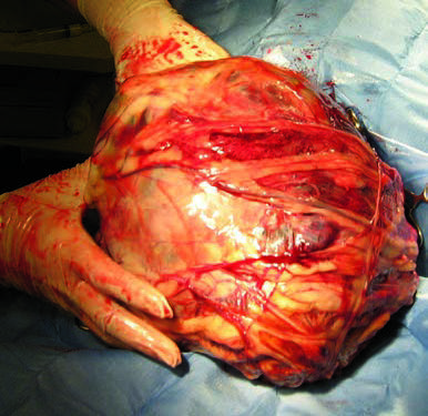 Figure 7. Excised 11-pound neoplastic spleen with numerous omental adhesions.