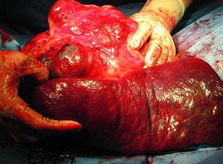 Figure 13. Excised 9-pound splenic tumor with numerous omental adhesions.