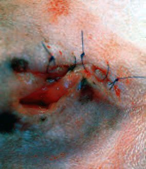 Closure of wound after wide laser excision of dermal mass.