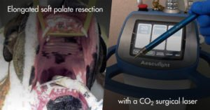 elongated soft palate resection with a co2 surgical laser