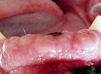 Figure 1B: Pre-op view. Hyperplastic gingiva covered mandibular incisors.