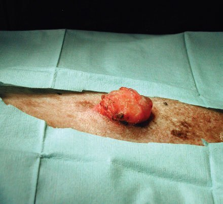 2A. Pre-operative view of the mass.