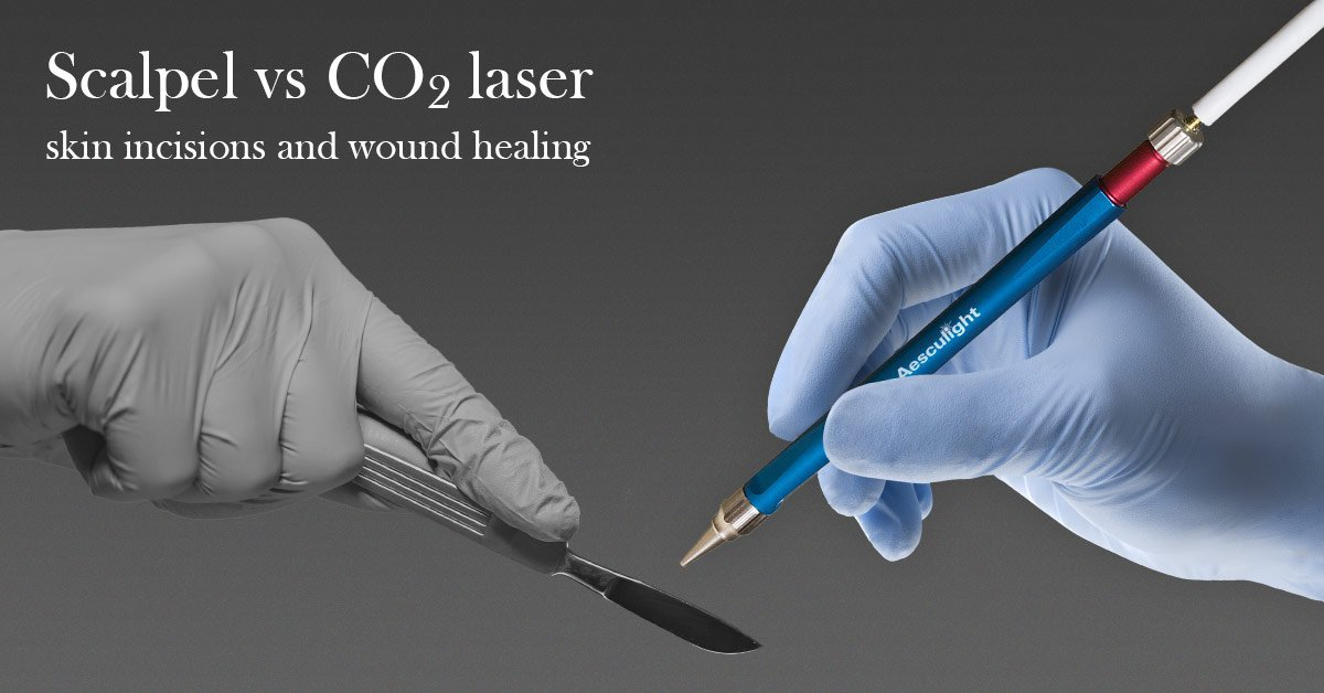 Comparison of the Influence of CO<sub>2</sub>-laser &#038; Scalpel Skin Incisions on Surgical Wound Healing Process