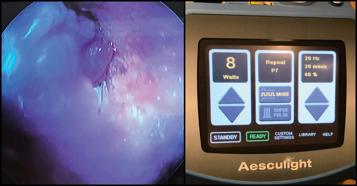 How to remove aural polyp with flexible-fiber CO<sub>2</sub> laser