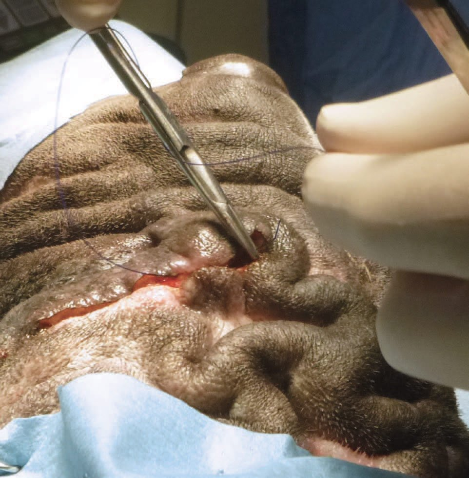 Figure 8: Following resection of each area on the scalp, the edges were sutured first with 2-0 PDS horizontal mattress sutures, and then closed by skin sutures using 2-0 monofil in a simple interrupted or cruciate pattern.
