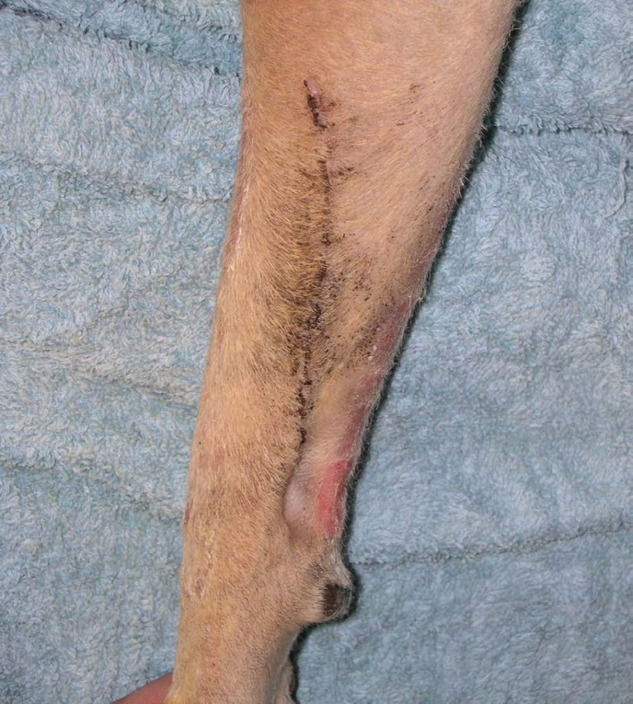 Figure 6C: 14 days after laser surgery. The surgical site is healed with no complications and with good cosmesis.