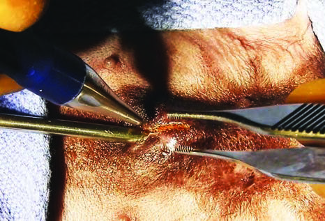 Figure 3A: The metal catheter is used as a guide for making the incision. It also serves as a backstop, protecting the opposite side of the sheath and end of the penis from damage.
