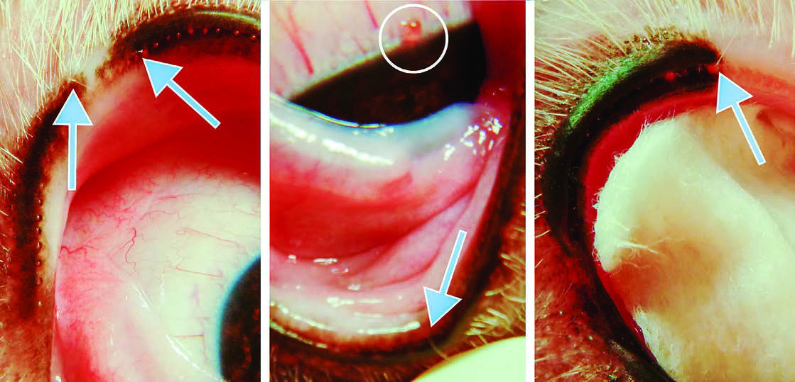 Figure 1: Examination revealed the following: A) Two distichia of the left upper eyelid; B) one distichia of the left lower eyelid, directly opposite 1 to 2-mm blister-like lesion of the cornea (circled); C) one distichia of the right upper eyelid.